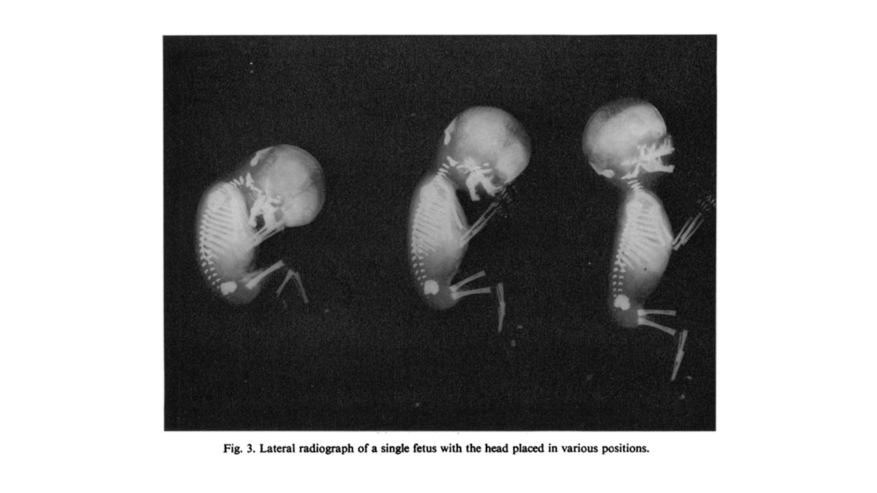 fetal-spine.jpg