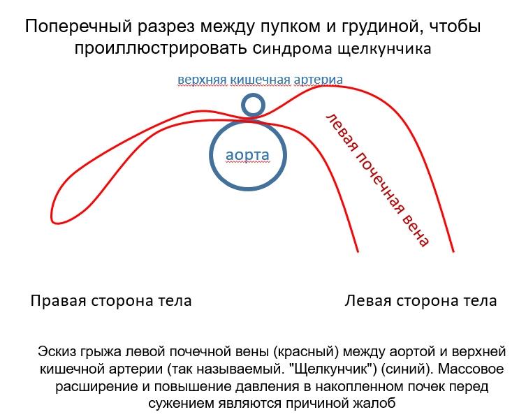 skizze-nkp-ru